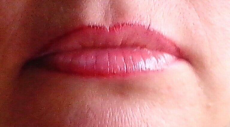 Новая технология восстановления красной каймы губ