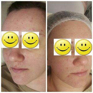 Курс уходов для проблемной кожи с высыпаниями и широкой порой